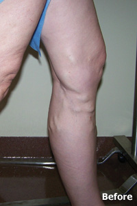 Before Patient - Legacy Vein Clinic