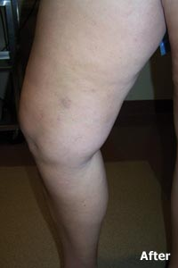 varicose and spider vein patient of Legacy Vein Clinic - After