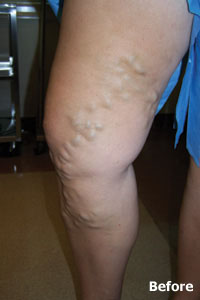 varicose and spider vein patient of Legacy Vein Clinic