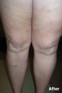 varicose and spider vein after treatment