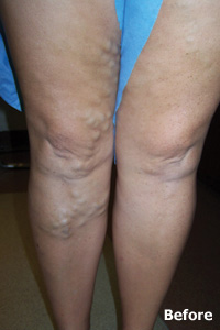 varicose and spider vein before treatment