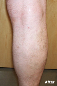 Endovenous Laser Treatment is an FDA-approved alternative to surgical vein stripping - After