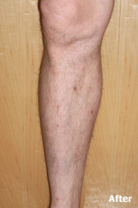Endovenous Laser Treatment is an FDA-approved alternative to surgical vein stripping - After few weeks