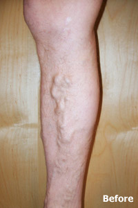 ELAM before image of patient of Legacy Vein Clinic