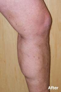 ELM after image of patient of Legacy Vein Clinic