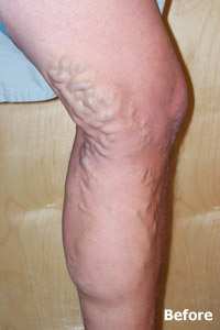 ELM before image of patient of Legacy Vein Clinic