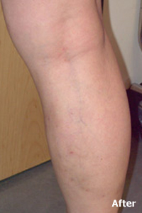 After of Varicose Vein Treatment at Legacy Vein Clinic