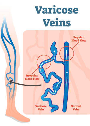 varicose veins diagram from Legacy Vein Clinic