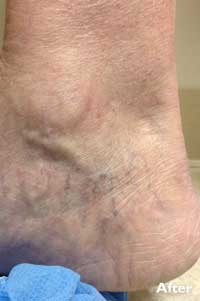 Sclerotherapy - After - Patient 1 - Legacy Vein Clinic South Bend