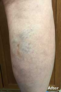 Sclerotherapy - After - Patient 2 - Legacy Vein Clinic South Bend
