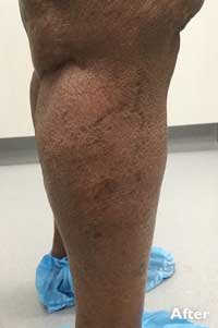 Sclerotherapy - After Image - Patient 3 - Legacy Vein Clinic South Bend