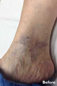 Sclerotherapy - Before - Patient 1 - Legacy Vein Clinic South Bend