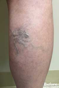 Sclerotherapy - Before Image - Patient 2 - Legacy Vein Clinic South Bend