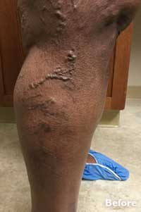 Sclerotherapy - Before Image - Patient 3 - Legacy Vein Clinic South Bend